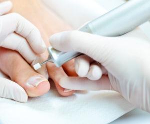 behandeling tegen voetschimmel bij Beauty Day