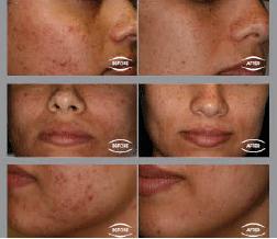 acné behandeling mogelijk bij Beauty Day Xperience